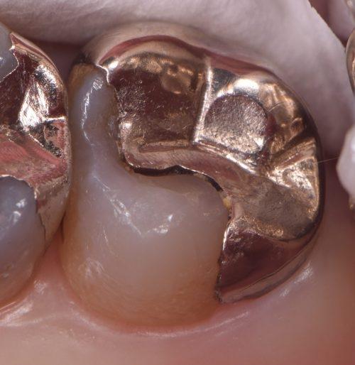 歯 し みる 銀 女性芸能人の歯・画像掲示板