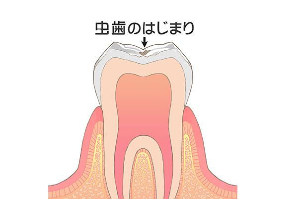 歯が失われていく仕組み